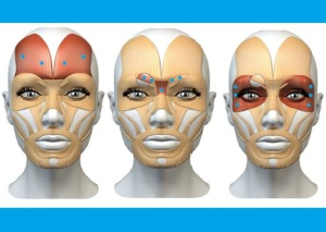 Botox en Nutriclinic